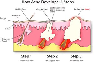 acne_develops