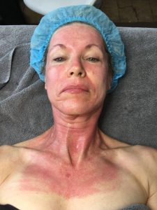 After the Dermapen treatment and before the application of Lycogel